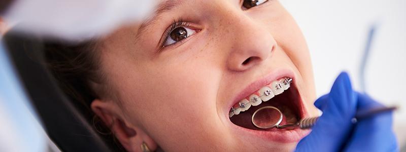 göktürk-ortodonti