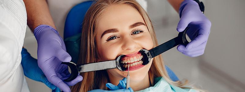 göktürk-ortodonti-pekiştirme-tedavisi